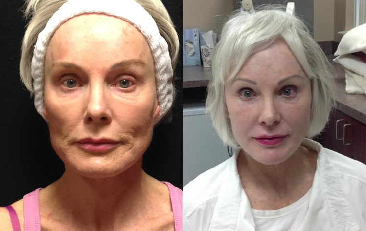 Bellafill Before After Vancouver Laser Skin Care Clinic