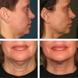 Ultherapy-BeforeAfter - Vancouver Laser Skin Care Clinic