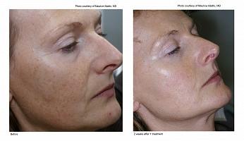 Ipl Photofacial Vancouver Laser Skin Care Clinic