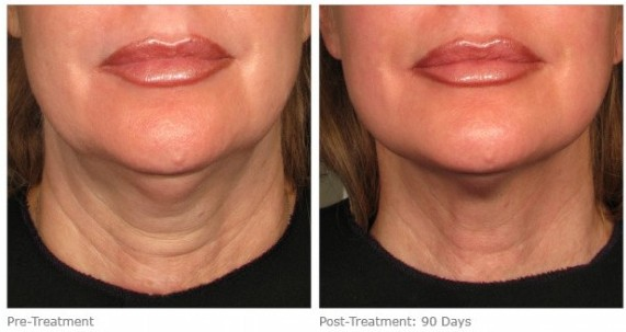 Ultherapy Lower Face Vancouver Laser Skin Care Clinic