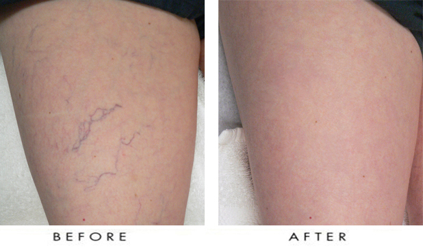 Spider Veins On Legs Before After Vancouver Laser Skin